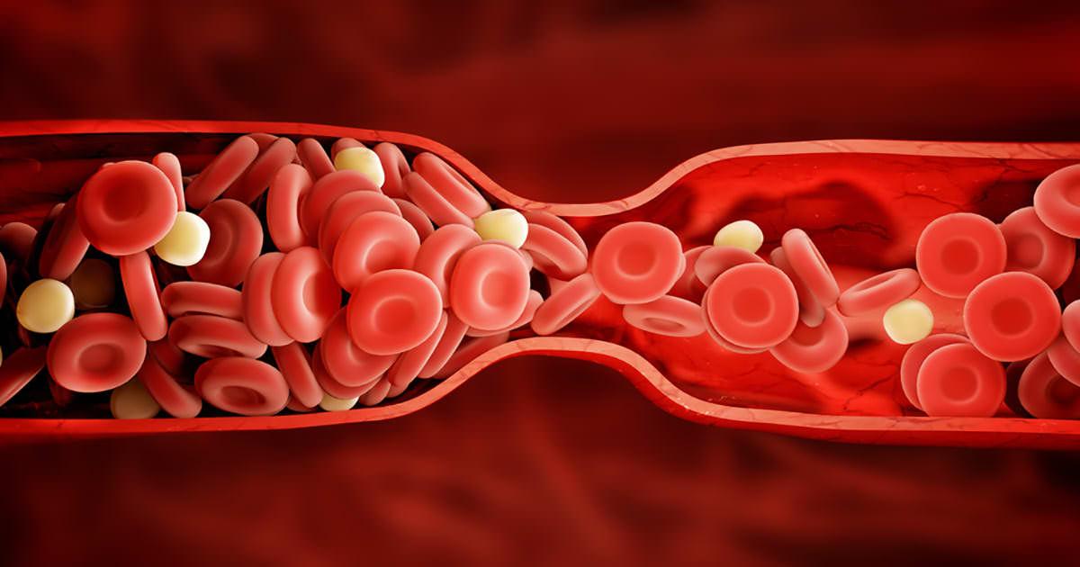 Der Körper warnt einen vor einem Blutgerinnsel: 8 versteckte Zeichen, die man niemals ignorieren sollte