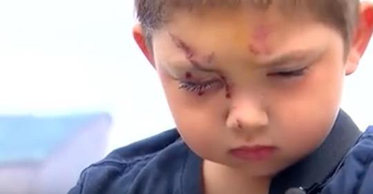 Mutter erzählt die herzzerreißende Wahrheit, als ihr 6-jähriges Kind nach Mobbing-Attacke im Krankenhaus liegt