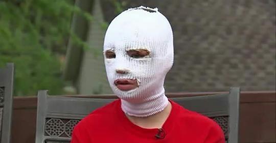Schwer verbrannte 15-Jährige will nicht zum Schulball – als ihr jemand nahe kommt, zittert sie