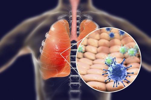 Bronchitis – fünf wirksame Heilmittel