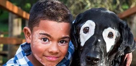 Ein Hund half einem kleinen Jungen mit Vitiligo, sich in dem Spiegel anzusehen und sich normal zu fühlen