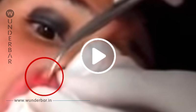 Diese Frau spürt, wie sich was in ihrer Lippe bewegt, doch was der Arzt rausholt, ist schlimmer als alles, was du je gesehen hast!