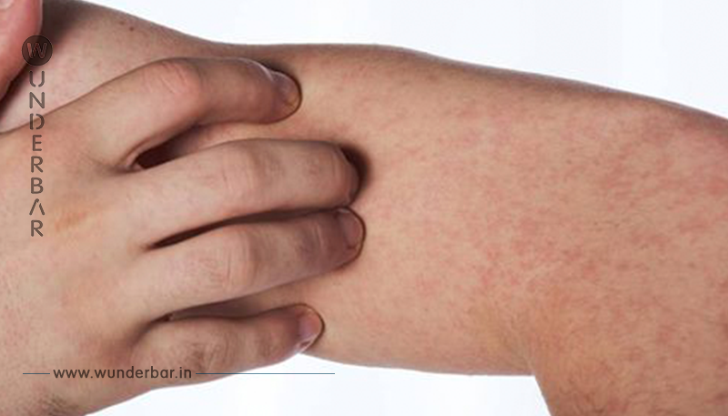 Macht mich so wütend: Sohn von Impfgegnern erkrankt als Erwachsener an Masern