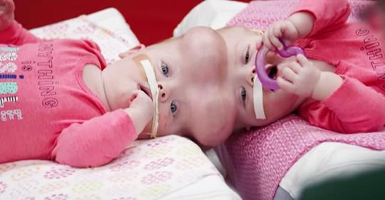 Fast zwei Jahre nach ihrer Trennung feiern die siamesischen Zwillinge ihre neuen Leben