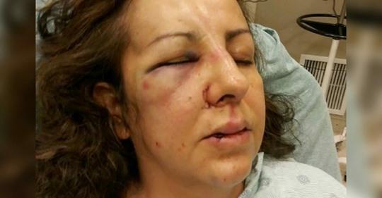 Mutter von Mobberinnen ihrer Tochter brutal zusammengeschlagen als sie Gespräch suchte