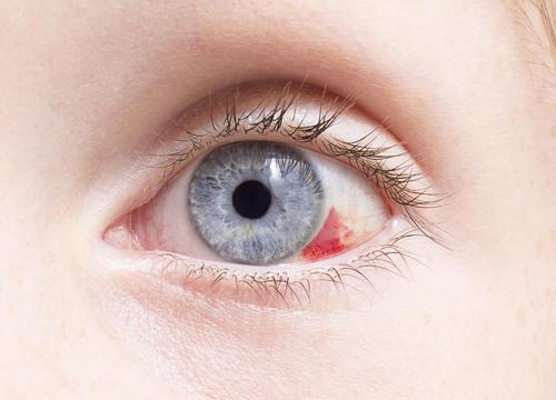6 alltägliche Dinge, die möglicherweise Deiner Gesundheit schaden können