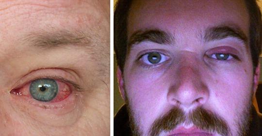 7 Gründe, weshalb du rote Augen deiner Gesundheit zuliebe ernst nehmen solltest