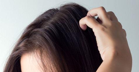 Juckende Kopfhaut: Diese Hausmittel verschaffen Linderung