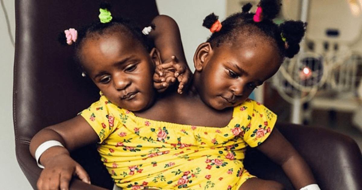 Ärzte gaben ihnen nur wenige Tage zu leben – vier Jahre später gehen siamesische Zwillinge zur Schule