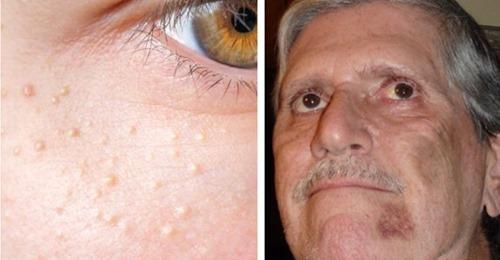 Zu schnelles Altern im Gesicht: 8 alarmierende Anzeichen