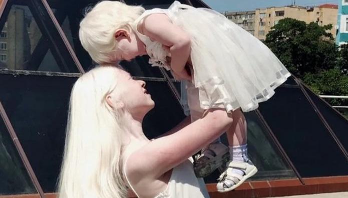 Zwei Albino-Schwestern mit 12 Jahren Altersunterschied verblüffen alle mit ihrer seltenen Schönheit